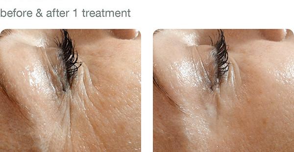elapromed_01_wrinkles.jpg