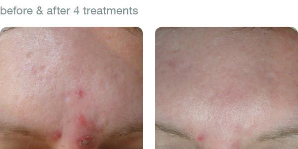 elapromed_02_acne_rosacea.jpg