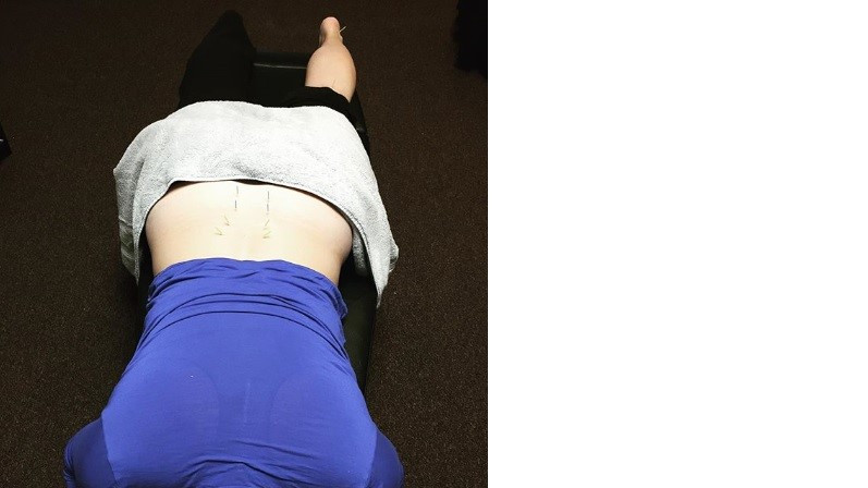 Acupuncture for sciatic-type pain.jpg