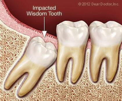 Impacted wisdom tooth.jpg