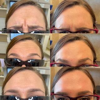 Paige forehead.jpg