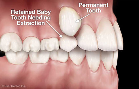 retained-baby-tooth.jpg