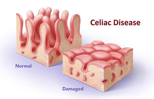 Coeliac Disease damages the villi in the small intesine which reduces absorption of foods.
