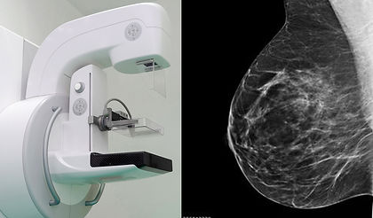 mammographie.jpg