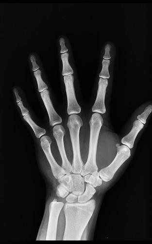 Radiologie Main