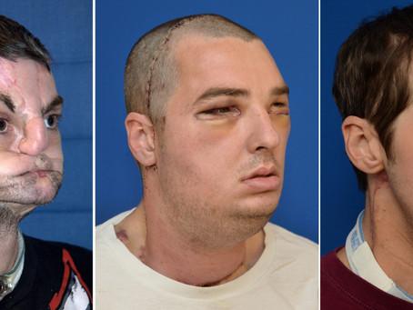 The LLF History: Groundbreaking Facial Transplant Surgery