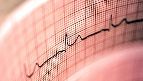 EKG & Blutdruck