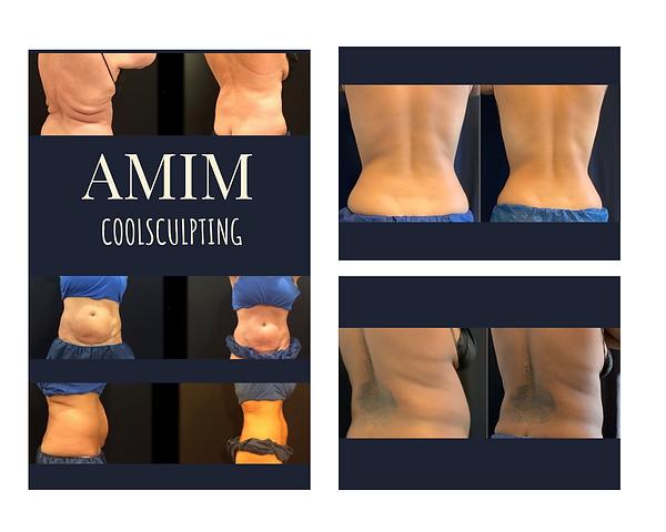 AMIM_CS_W_05.png