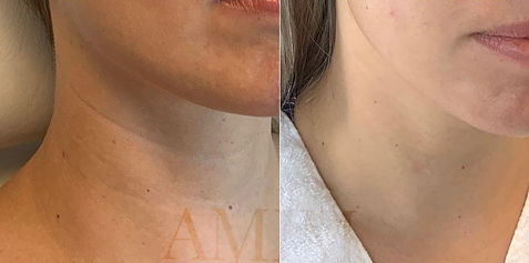 AMIM CIT before and after microneedling collagen induction therapy