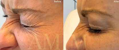 AMIM botox before and after