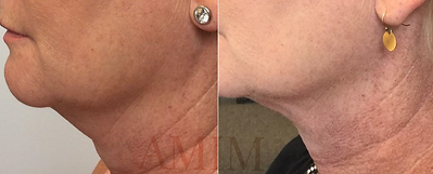 AMIM Kybella before and after