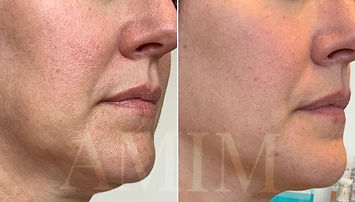 AMIM CIT microneedling collagen induction therapy