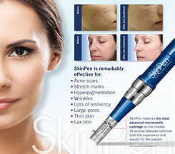 spa-skinpen-device-photo.jpg