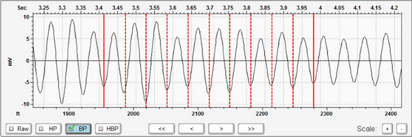 Collar Analysis screen from Echometer's TAM software showing how the Band Pass filters alters the Raw Data.