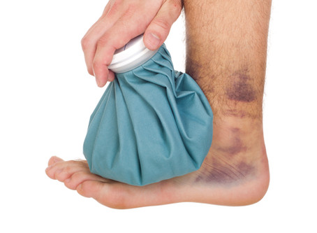 Ankle Sprains? Do Not ignore Proper Rehabilitation