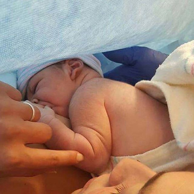 Feeding After C-Section