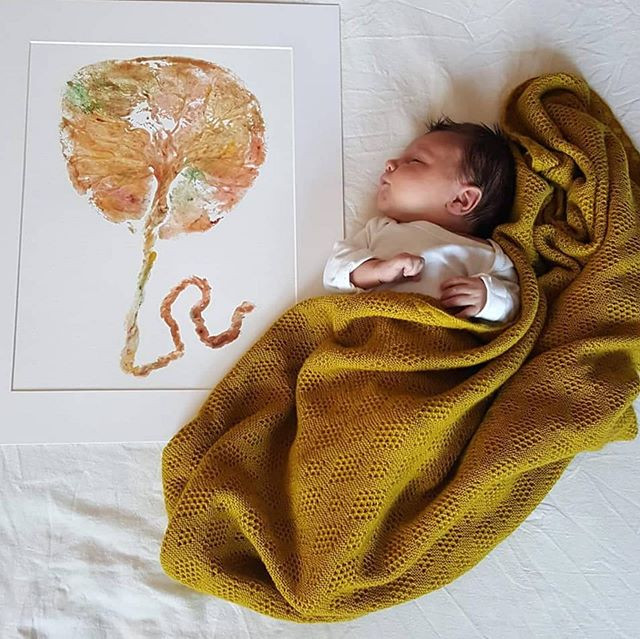What is retained placenta?