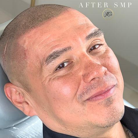 after_smp.jpeg