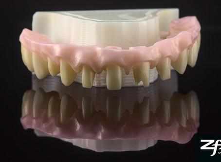 Cas prothèse : Bridge Zircone Thimble Crown