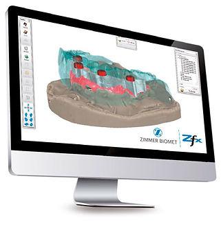 Logiciel CAD Zfx Dental