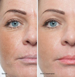 before-and-after-microneedling-silktouch-med-spa-290x300