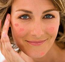 Peeling manchas faciales
