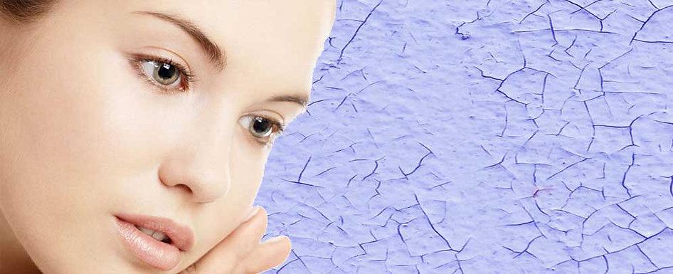 Tratamiento peeling acné