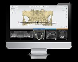 3Shape Implant Studio 2017_pano curve_im