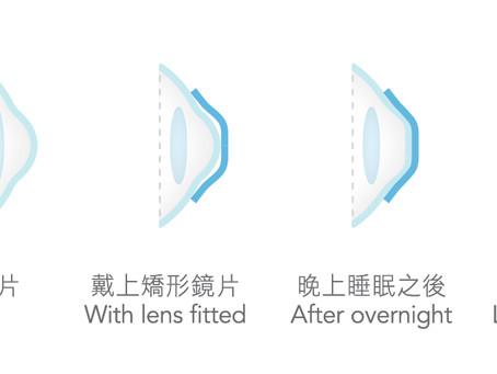 何谓角膜塑型?