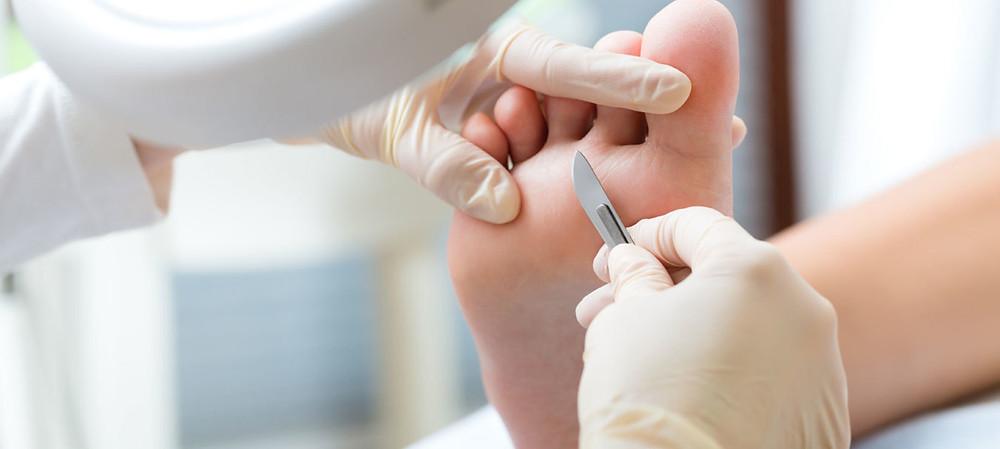 promo du 1/9/19 au 30/9/2019 recevez une crème pour les pieds gratuite avec votre RDV