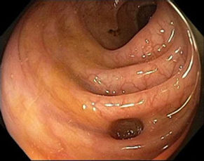 Diverticulos de colon