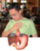 Reflujo gastroesofagico, agruras, esofagitis