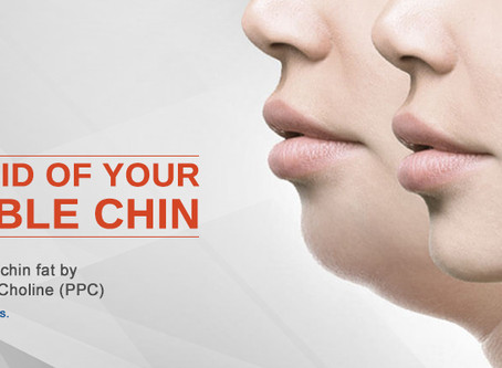 WHAT HAPPENS IN CHIN AUGMENTATION