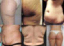 Adiposidad1 cellulite.jpg