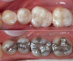Scarborough dentist tooth-coloured restorations