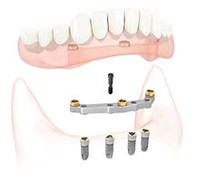 Hastings Dental Centre implant-retained denture