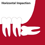 Perth dentist horizontal wisdom tooth impaction