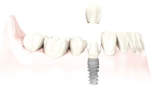 Hastings Dental Centre single tooth implant