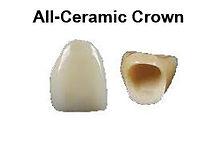 Scarborough dentist all-ceramic crown