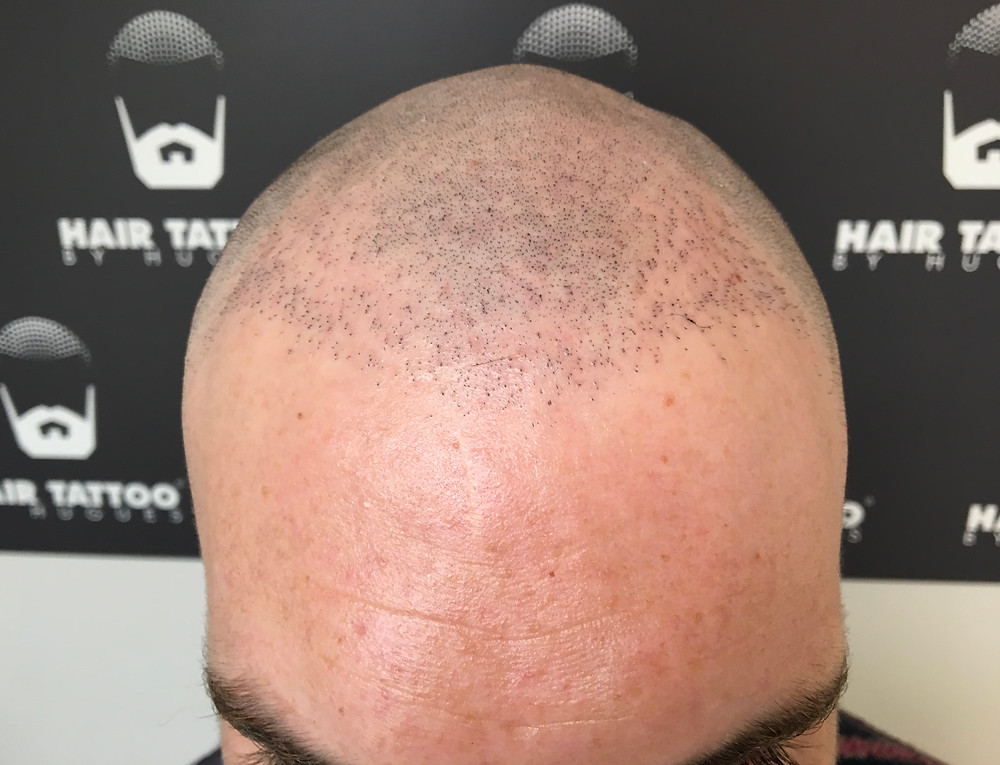 Results Hair transplant