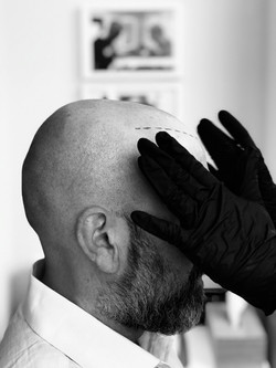 Prix formation Hair tattoo? Formation micropigmentation capillaire bruxelles, formation dermopigment