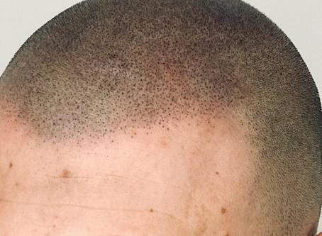 C'est quoi une pigmentation naturelle?
