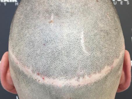 La Dermopigmentation capillaire est-elle compatible avec la greffe de cheveux?