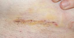 7 days post surgery