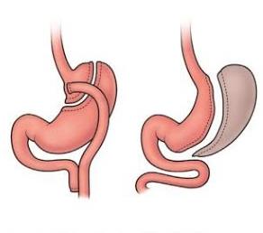 Cirurgia Bariátrica - Técnicas