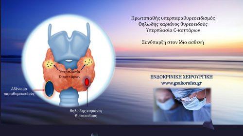 Υπερπαραθυρεοειδισμός (αδένωμα παραθυρεοειδούς), υπερπλασία C-κυττάρων, θηλώδης καρκίνος θυρεοειδούς-συνύπαρξη στον ίδιον ασθενή