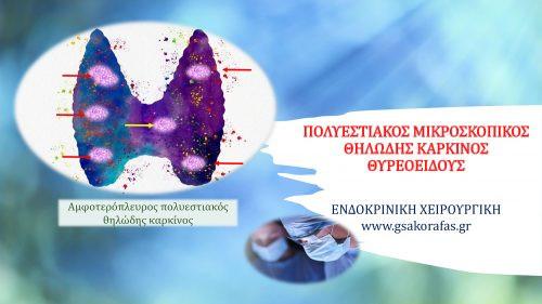 Πολυεστιακός μικροσκοπικός θηλώδης καρκίνος θυρεοειδούς