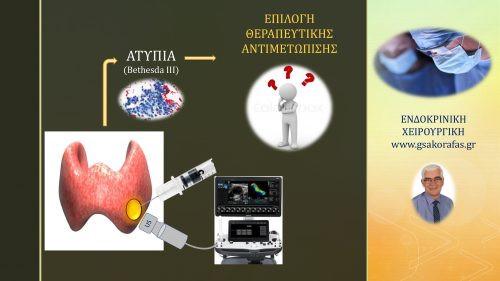 Όζοι θυρεοειδούς και ατυπία - θεραπευτικές επιλογές