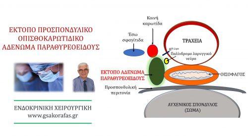 Έκτοπο αδένωμα παραθυρεοειδούς (προσπονδυλικό) σε ασθενή με πρωτοπαθή υπερπαραθυρεοειδισμό και υπερθυρεοειδισμό