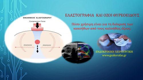Ελαστογραφία και όζος θυρεοειδούς - διάκριση καλοήθους από κακοήθη όζο
